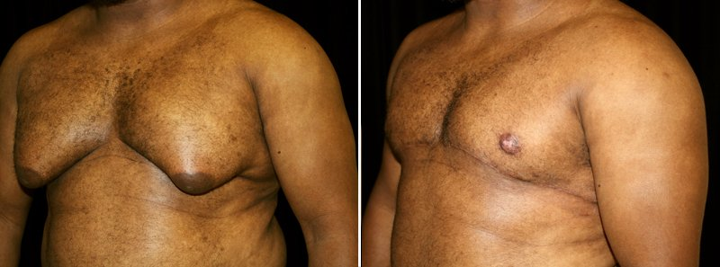 Gynecomastia man patient before and after left side photo 1