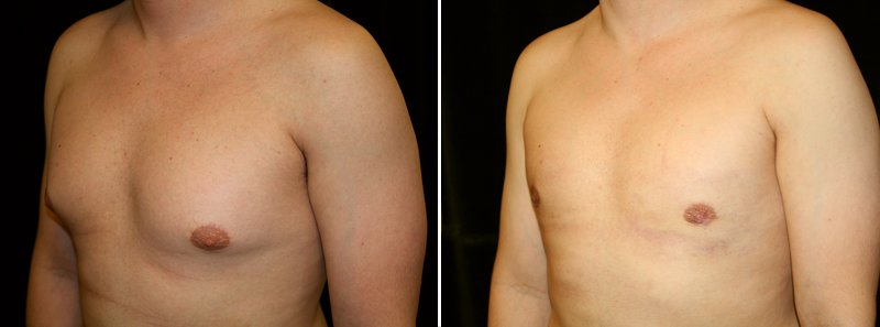 Gynecomastia man patient before and after left side photo 10