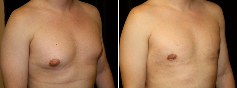 Gynecomastia man patient before and after right side photo 11
