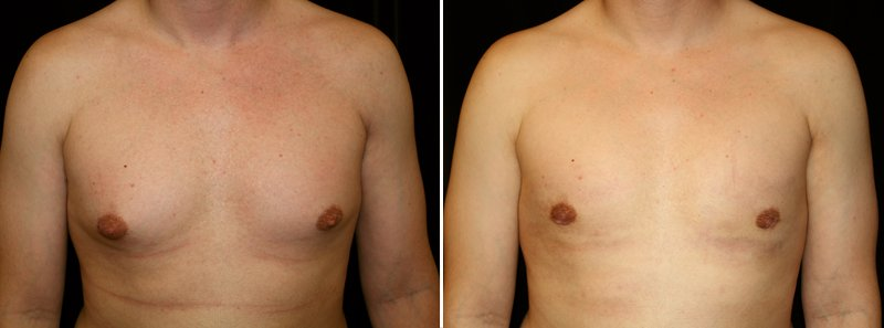 Gynecomastia man patient before and after front photo 12