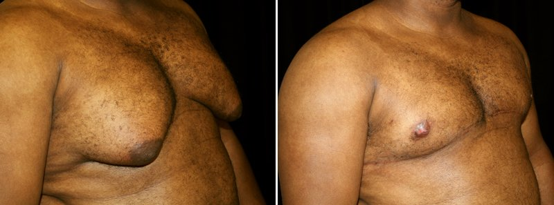 Gynecomastia man patient before and after right side photo 2