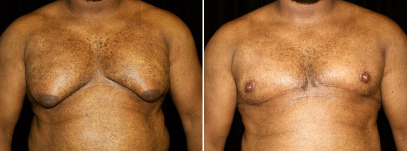 Gynecomastia man patient before and after front photo 3