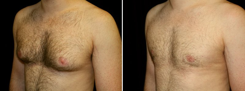 Gynecomastia man patient before and after left side photo 4