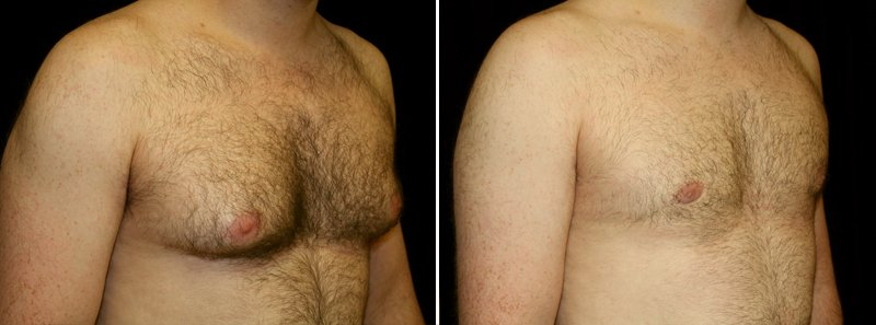 Gynecomastia man patient before and after right side photo 5
