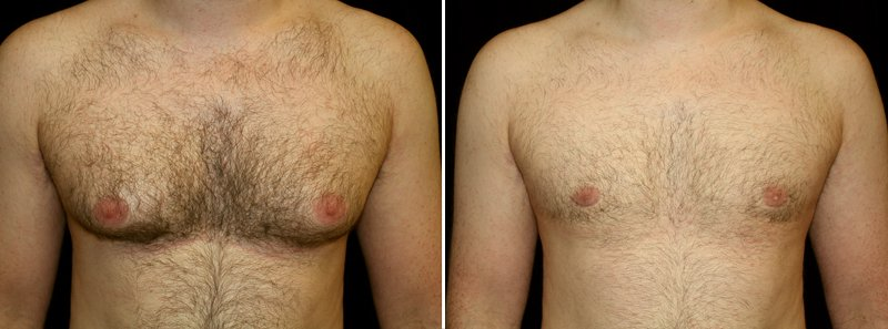 Gynecomastia man patient before and after front photo 6