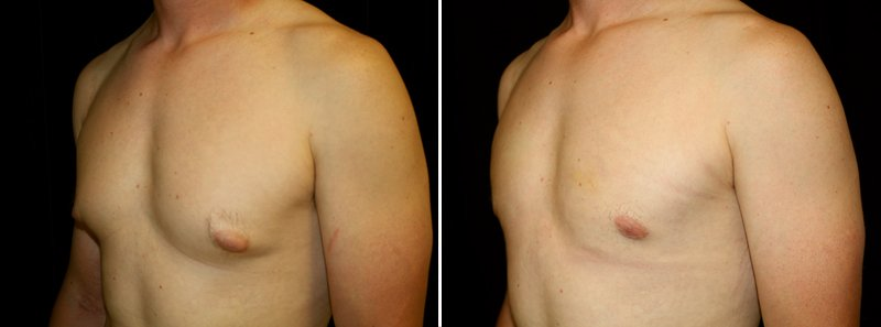 Gynecomastia man patient before and after left side photo 7
