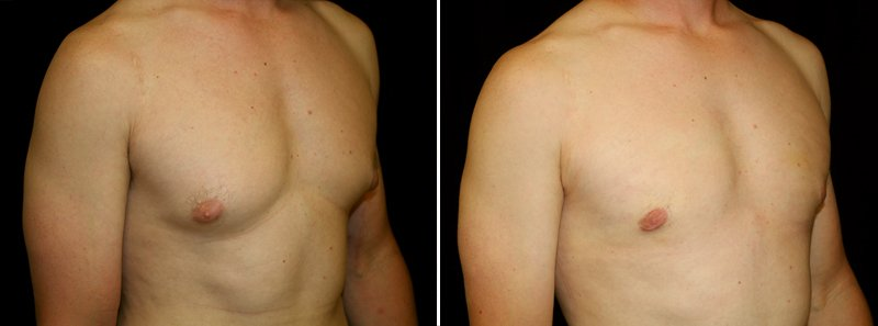 Gynecomastia man patient before and after right side photo 8