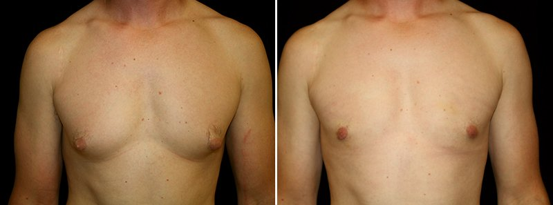 Gynecomastia man patient before and after front photo 9