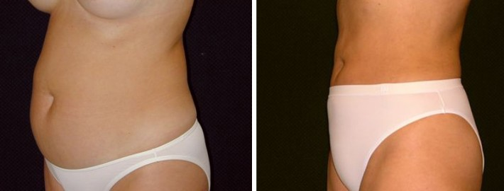 Liposuction woman patient before and after left side photo 10