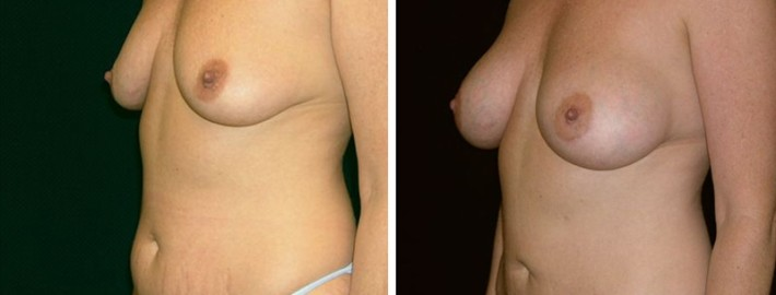 Liposuction woman patient before and after left side photo 11