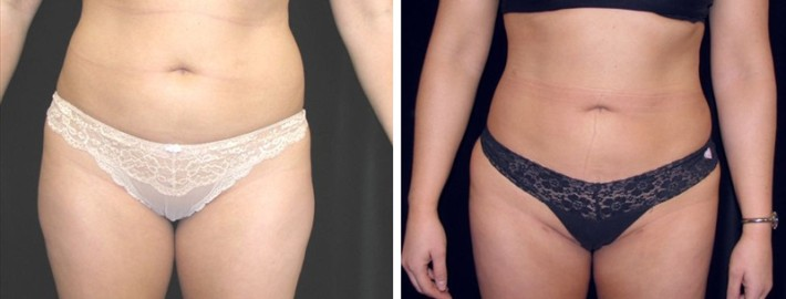 Liposuction woman patient before and after front side photo 12