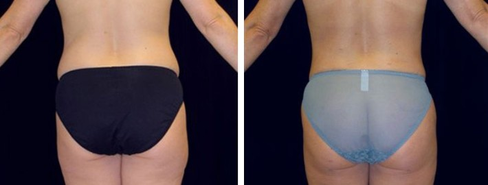 Liposuction woman patient before and after back end photo 3