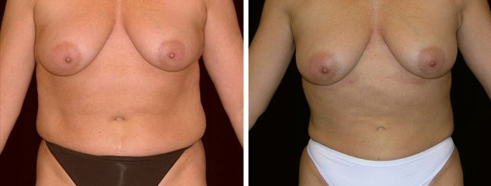 Liposuction woman patient before and after front photo 6