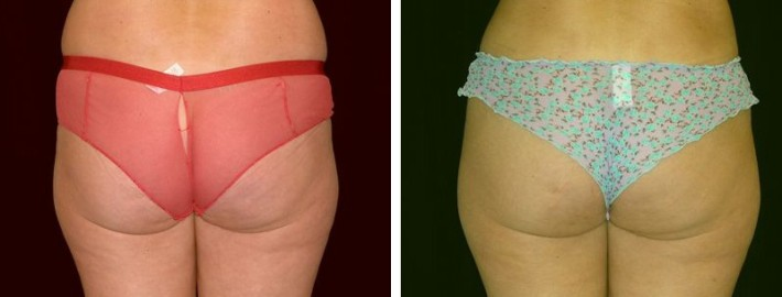 Liposuction woman patient body before and after back end photo 7