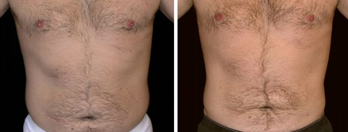 Liposuction man patient before and after front photo 8