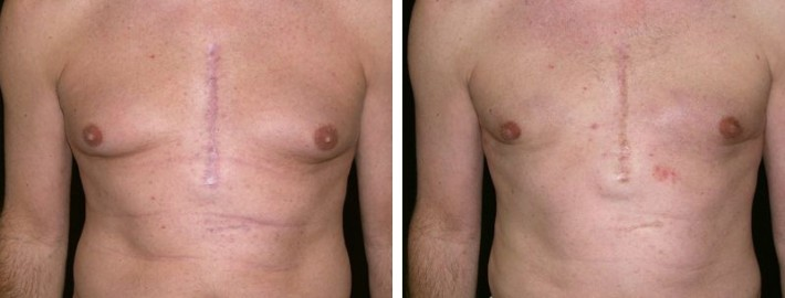 Liposuction man patient before and after front photo 9