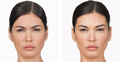 another woman patient botox procedure before and after photo