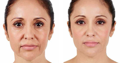 another woman patient Juvéderm procedure before and after photo