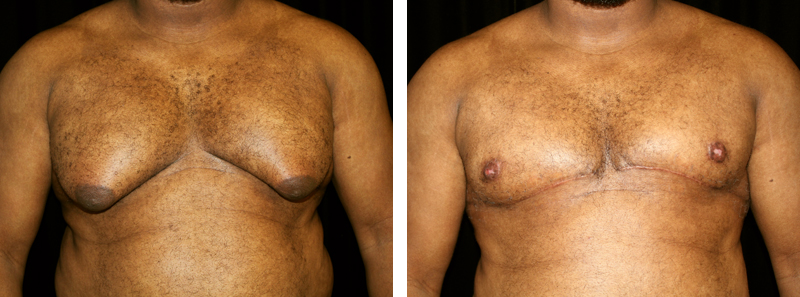 man patient gynecomastia procedure before and after photo