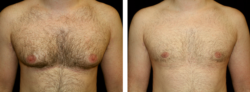 another man patient gynecomastia procedure before and after photo