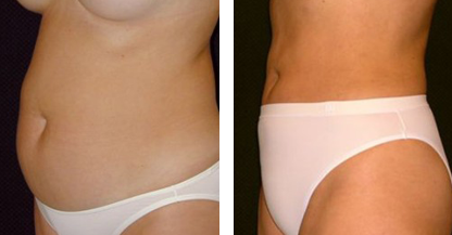 another woman patient liposuction procedure body left hand before and after photo