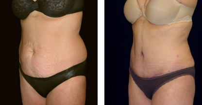 woman patient abdomen tummy tuck procedure before and after photo