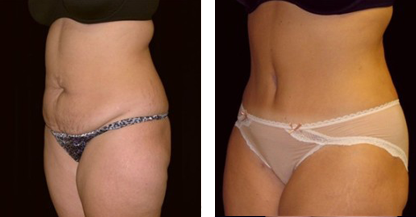 another woman patient abdomen tummy tuck procedure before and after photo