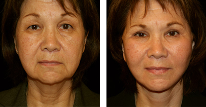 woman patient facelift procedure before and after front photo