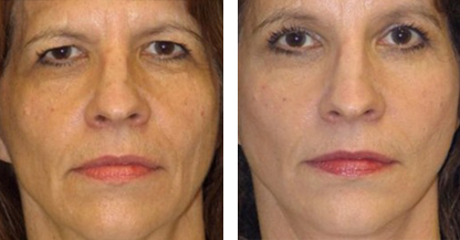 another woman patient facelift procedure before and after front photo