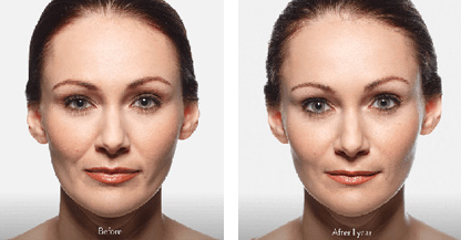 woman patient Juvéderm procedure before and after photo