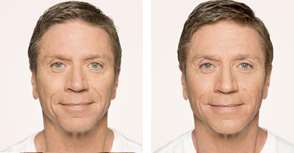 man patient Radiesse procedure before and after photo