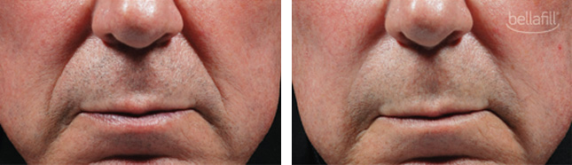 man patient bellafill procedure before and after photo