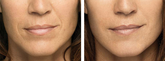 woman patient Belotero Balance procedure before and after photo