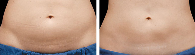 patient coolSculpting procedure before and after photo