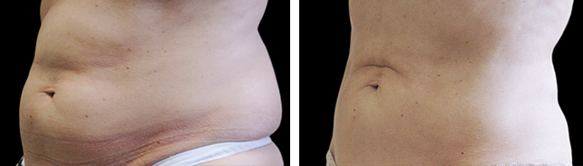 another patient coolSculpting procedure before and after photo