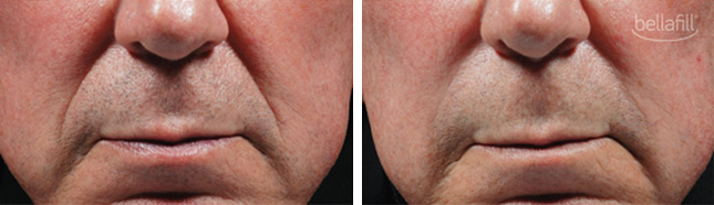 Bellafill procedure man patient before and after photo