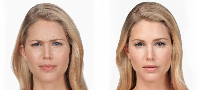 Botox procedure woman patient before and after photo 1