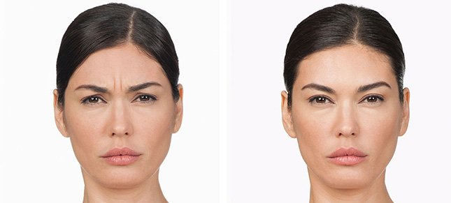 Botox procedure woman patient before and after photo 2