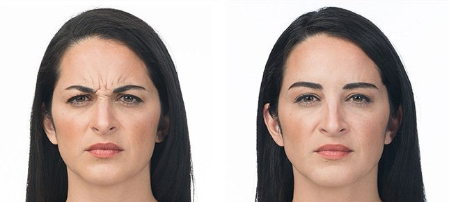 Botox procedure woman patient before and after photo 3