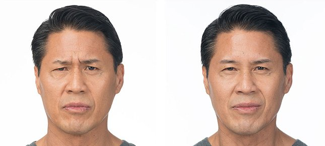 Botox procedure man patient before and after photo 1