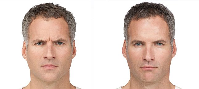 Botox procedure man patient before and after photo 2