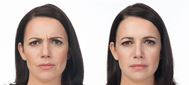 Botox procedure woman patient before and after photo 6