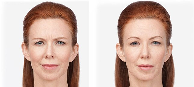 Botox procedure woman patient before and after photo 7
