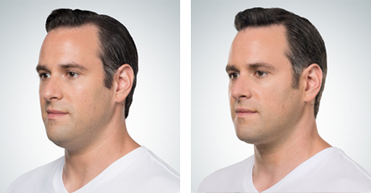 male patient fat injections procedure before and after photo