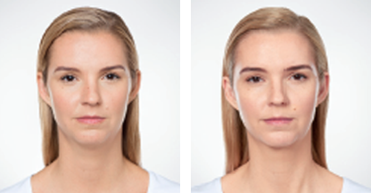 woman patient Kybella procedure before and after photo