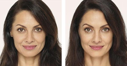 woman patient Radiesse procedure before and after photo