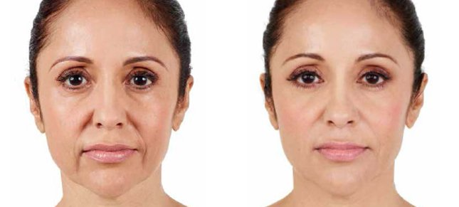Juvéderm procedure woman patient before and after front photo 2