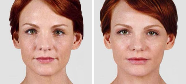 Juvéderm procedure woman patient before and after front photo 3