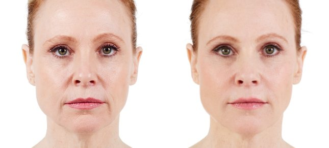 Juvéderm procedure woman patient before and after front photo 4