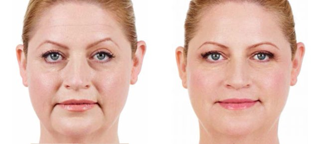 Juvéderm procedure woman patient before and after front photo 5